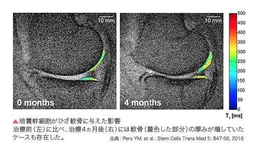 培養幹細胞がひざ軟骨に与えた影響 治療前(左)に比べ、治療4ヵ月後(右)には軟骨(着色した部分)の厚みが増していたケースも存在した。 出典:Pers YM, et al. : Stem Cells Trans Med 5: 847-56, 2016
