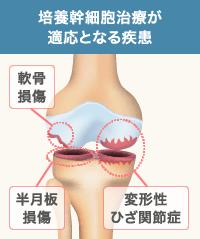 培養幹細胞治療はひざ関節内の疾患に効果的