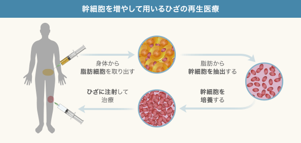 ひざの再生医療「培養幹細胞治療」の工程