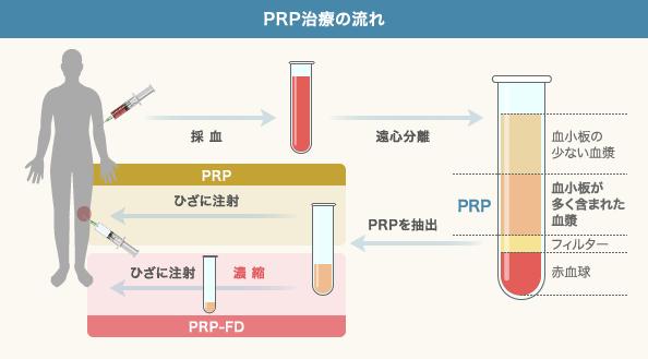 PRP(多血小板血漿)による治療の流れ