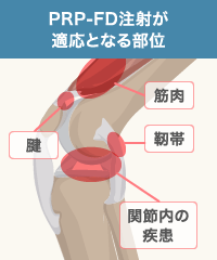 PRP-FDは特に関節内の痛みに効果的