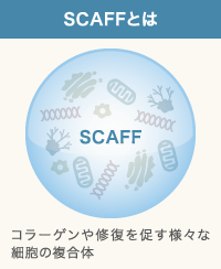 SCAFFとは何かの説明
