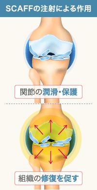SCAFF天然関節治療の作用