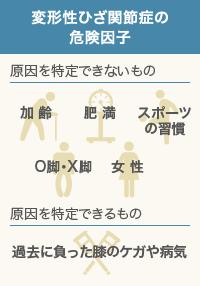 変形性ひざ関節症の危険因子