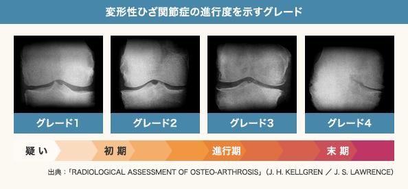 変形性ひざ関節症の進行度を示すグレード