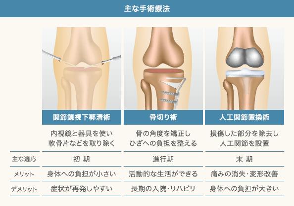 変形性ひざ関節症の手術と適応、メリット、デメリット