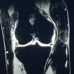 膝MRI画像(50代女性/中期変形性膝関節症)